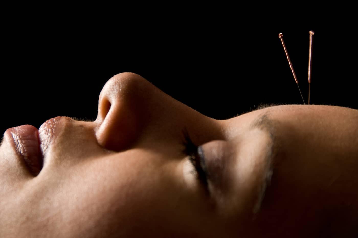 acupuntura medicina chinesa ceimec