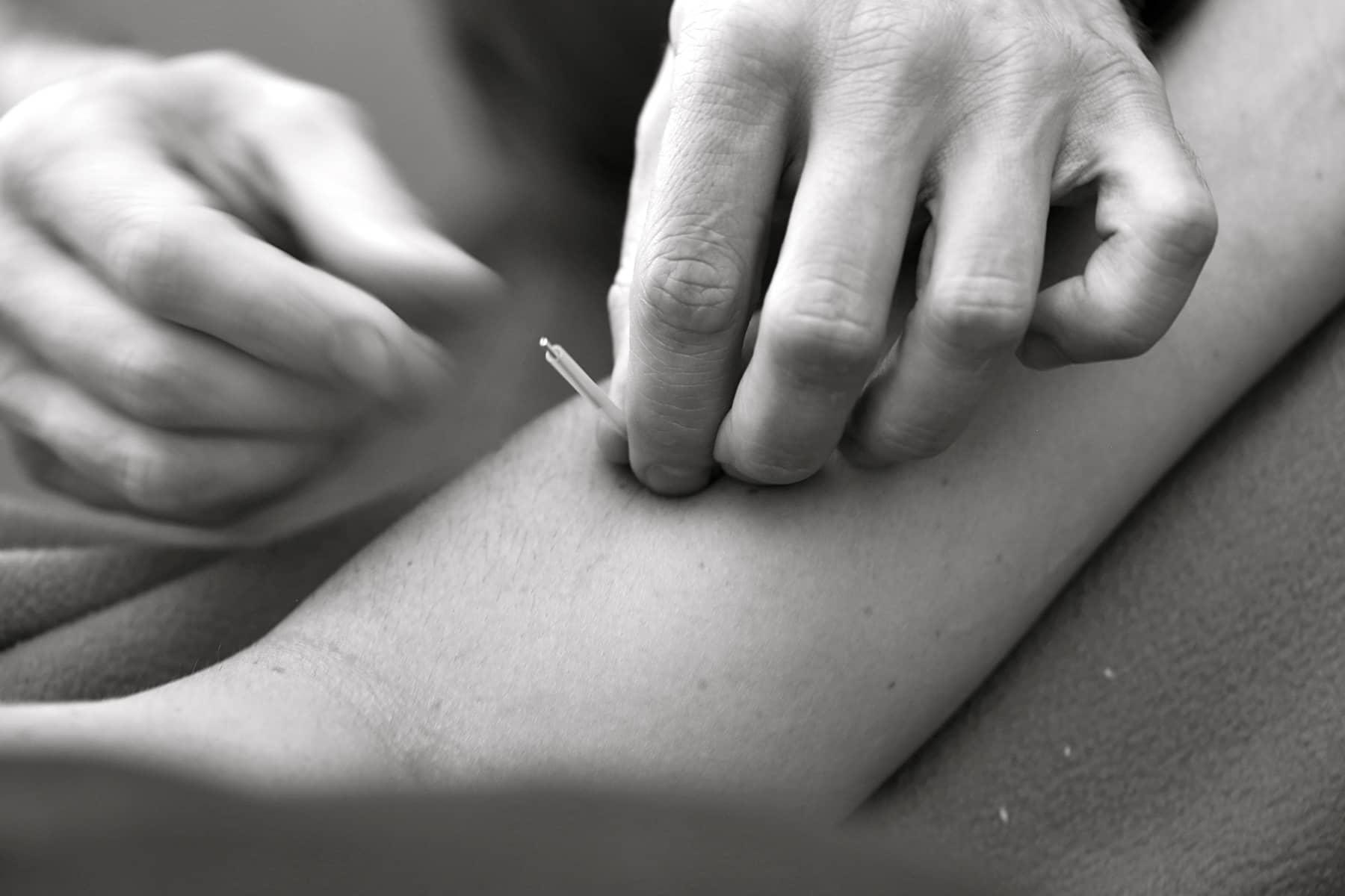acupuntura agulhamento procedimento medico