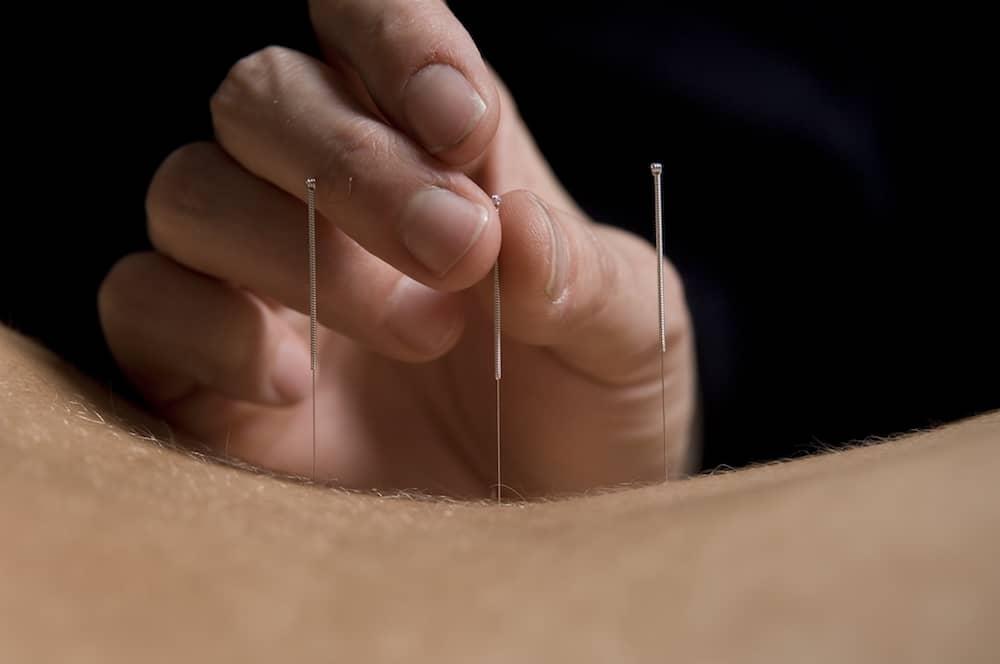acupuntura ceimec marcus yu bin pai