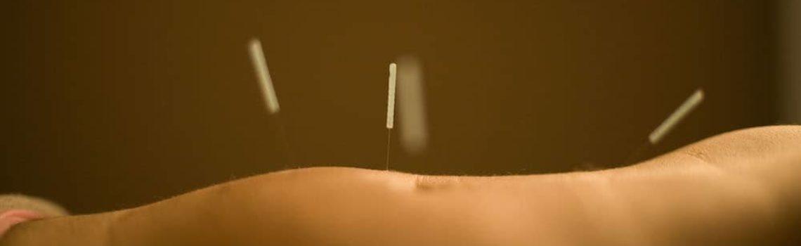Estudo: acupuntura para osteoartrite