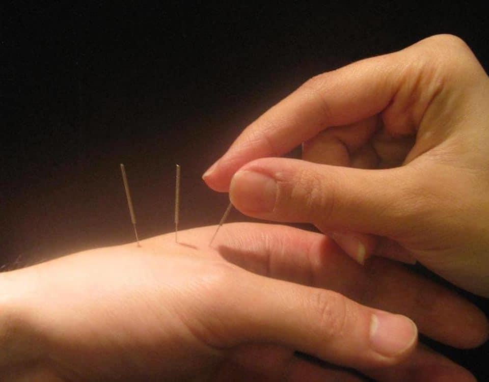 acupuntura dor tratamento