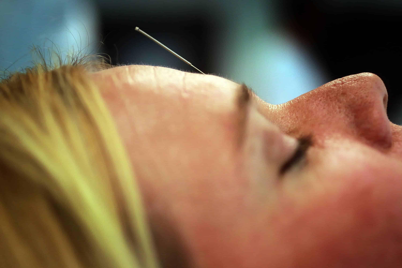 acupuntura extra head neck 3