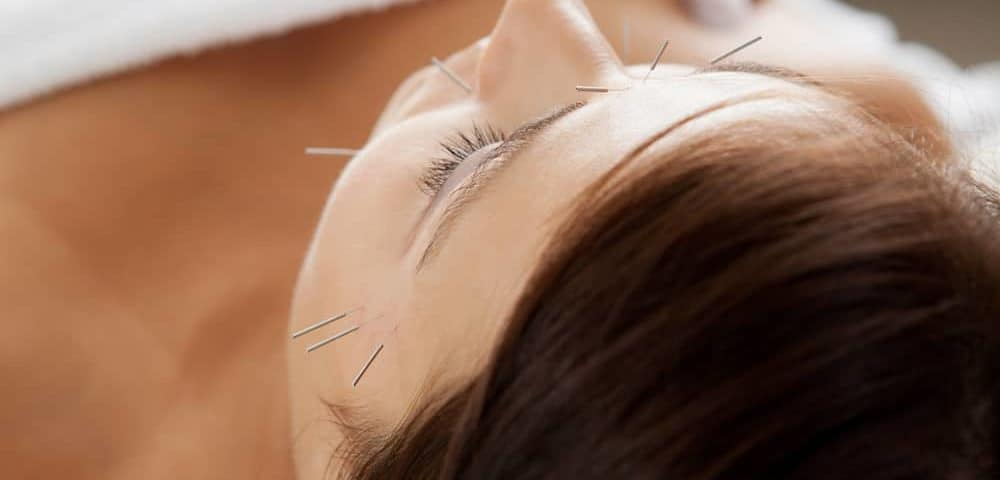 acupuntura paralisia facial