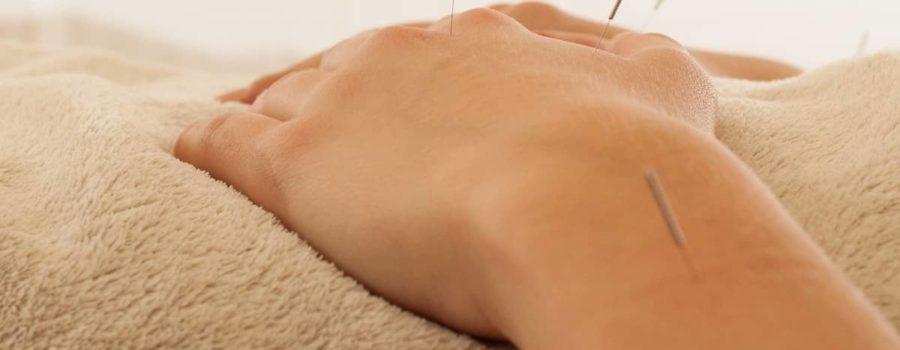 Acupuntura como tratamento para a disfunção temporomandibular